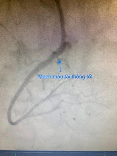 dong-mach-vanh-phai-tai-thong-tot-sau-can-thiep.jpg