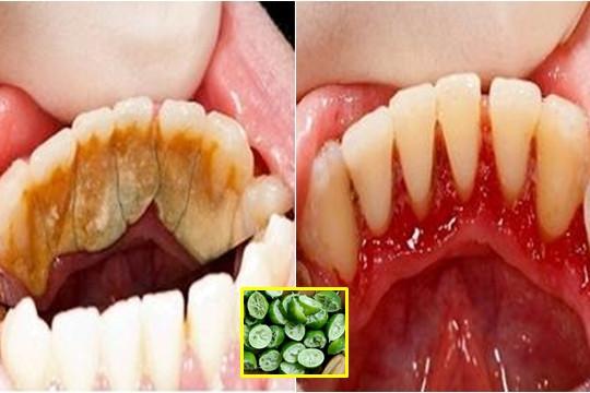 Mảng bám răng cứng đầu, lâu năm đến mấy cũng hết ngay sau 2 phút nhờ vài miếng vỏ chanh tưởng như vứt đi