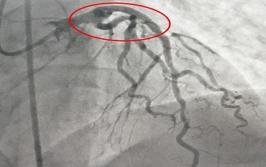 10 phút 'báo động đỏ', bệnh nhân nhồi máu cơ tim thoát khỏi nguy kịch