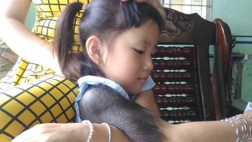 Nỗi khổ của bé gái 5 tuổi bị mắc bệnh 'người sói' ở miền Tây