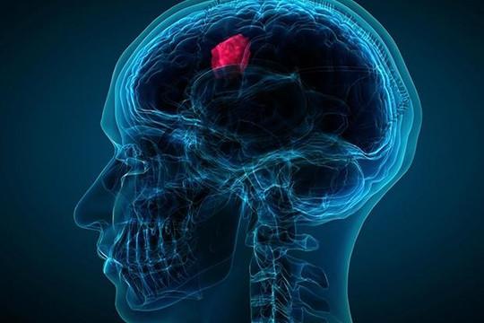 IBM Watson, hệ trí tuệ nhân tạo giúp chẩn đoán nhanh ung thư não