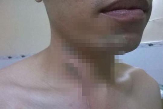 Nam thanh niên bị bỏng mặt và cổ vì hoá chất tẩy rửa bồn cầu