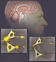 Thuốc trị giun sán niclosamide được phát hiện có thêm tác dụng chữa parkinson