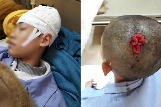 Mẹ viết tâm thư tố thầy đánh con trai tụ máu đầu nhập viện rồi phủi trách nhiệm