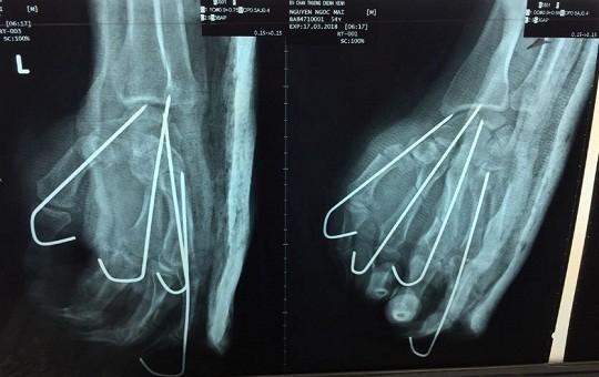 Người đàn ông đối diện nguy cơ mất cả bàn tay khi đang cưa gỗ
