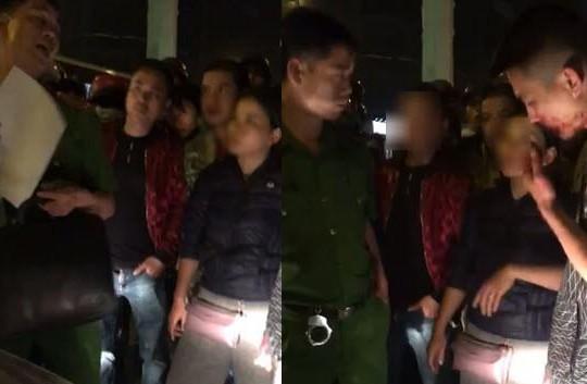 Tông xe máy, chủ ô tô ở Hà Nội còn gọi 4 côn đồ đánh người tóe máu