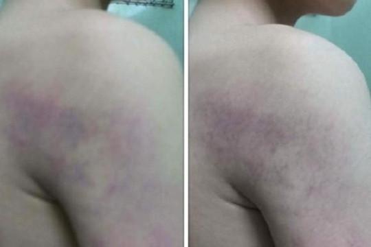 Hà Nội: Cô giáo lớp 1 đánh học sinh bầm tím tay vì làm sai bài tập