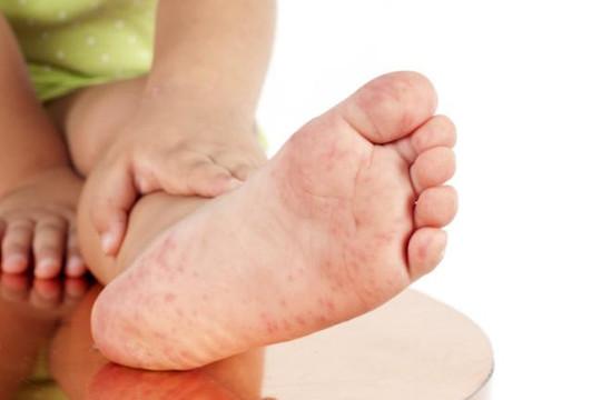 BS Trần Thị Huyên Thảo: 7 câu hỏi cần làm rõ về bệnh tay chân miệng