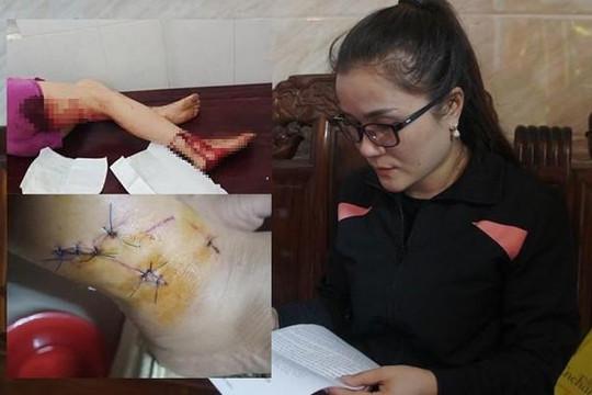 Hà Tĩnh: Một phụ nữ tố cáo bị hành hung, đe dọa