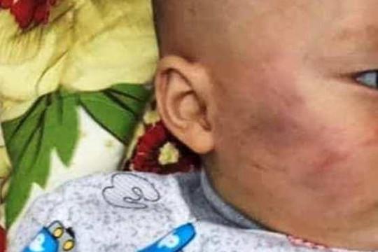 Mẹ bé trai bị tát đến nhập viện: 'Mong xử lý nghiêm minh'
