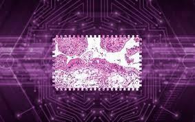 Dùng trí tuệ nhân tạo dự đoán khả năng sống của bệnh nhân ung thư