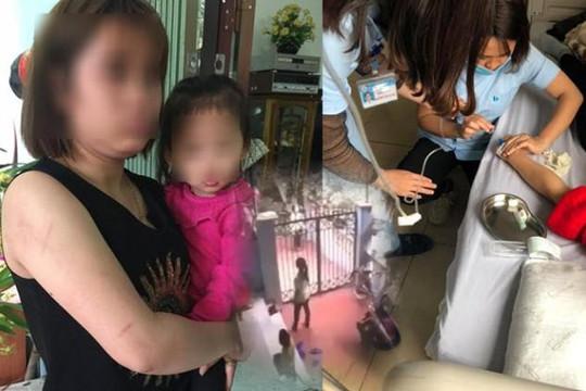 Gọi chồng về thăm con, vợ bị bồ nhờ người đến nhà ném gạch nhập viện ở Lào Cai