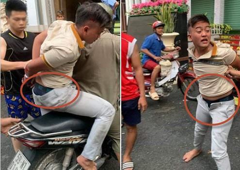 Ốm đòn do giật dây chuyền, tên cướp ở TP.HCM nhờ kéo quần bị tụt vì xấu hổ