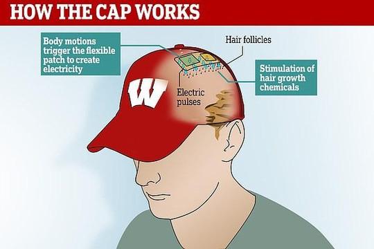 Mũ chống hói đầu
