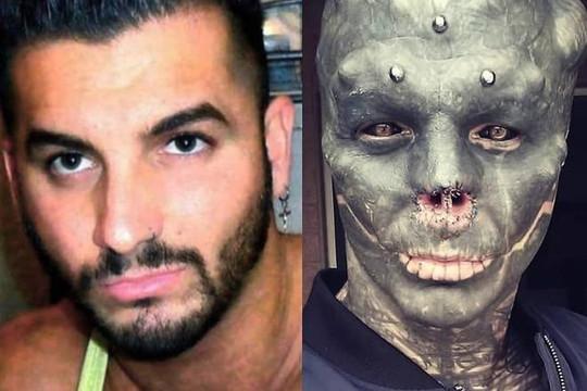 Chàng trai Pháp có sở thích kỳ lạ: Nghiện phẫu thuật để trở thành người hành tinh