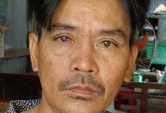 Bến Tre: Vô cớ bị đánh chấn thương đầu, hư mắt