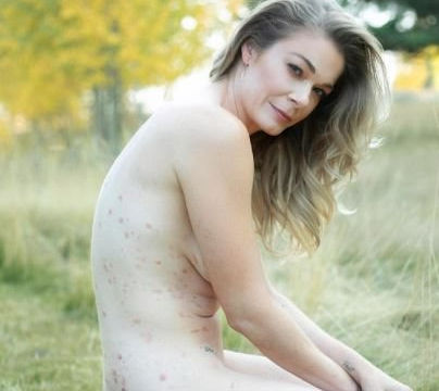 LeAnn Rimes chụp ảnh khỏa thân, công khai mình mắc bệnh vảy nến