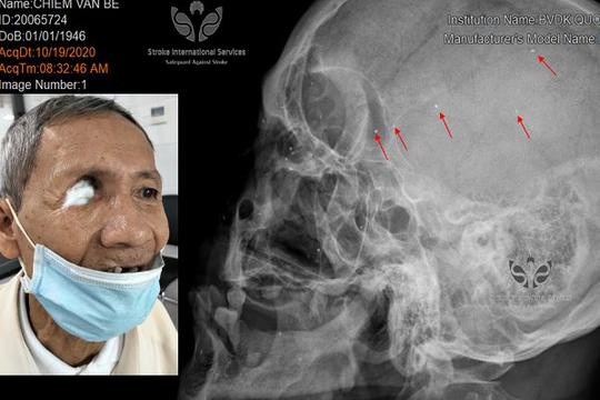 Cụ ông thương binh có hàng trăm mảnh đạn trong đầu, được bệnh viện hỗ trợ chữa trị