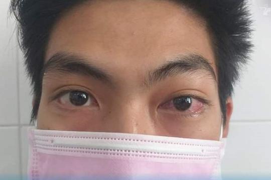Nam thanh niên suýt mù mắt vì bác sĩ chẩn đoán viêm giác mạc
