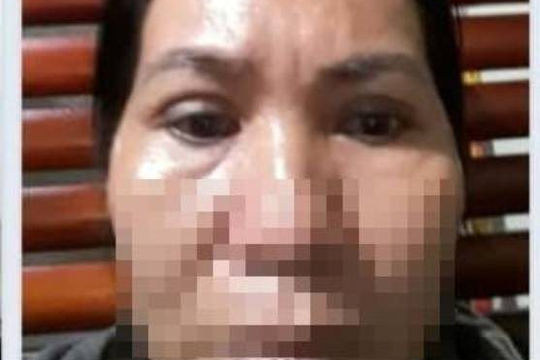 Người phụ nữ uất nghẹn sau 2 lần cắt mắt thẩm mỹ ở cơ sở có tên giống bệnh viện lớn