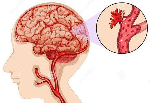 Bệnh nhân COVID-19 đối mặt với nguy cơ đột quỵ cao hơn