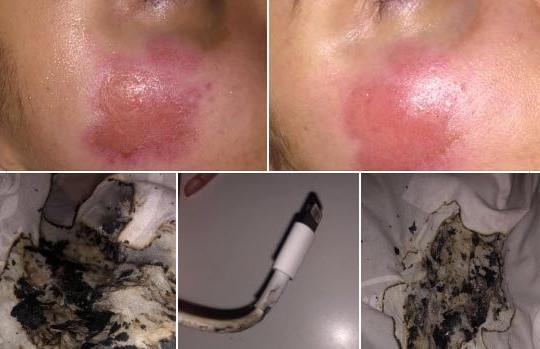 Bỏng mặt sau khi sạc iPhone qua đêm, cô gái 17 tuổi cảnh báo cộng đồng mạng